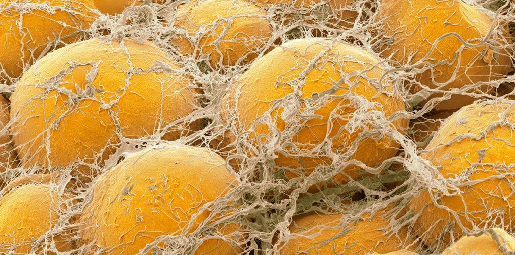 Как жиры взаимодействуют с кортизолом
